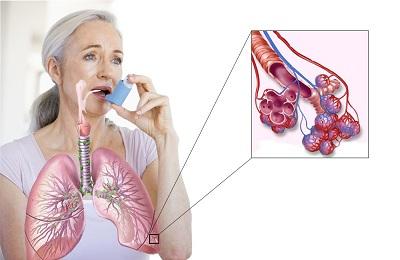 ингаляции при астме