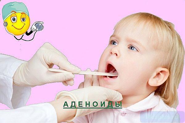 при аденоидах у детей с помощью небулайзера