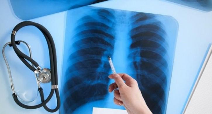 ингаляции при туберкулезе легких лекарство